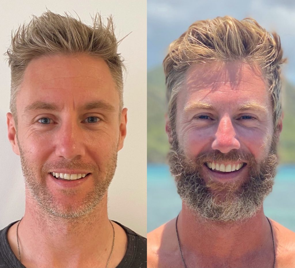 Before and after rowing the Atlantic